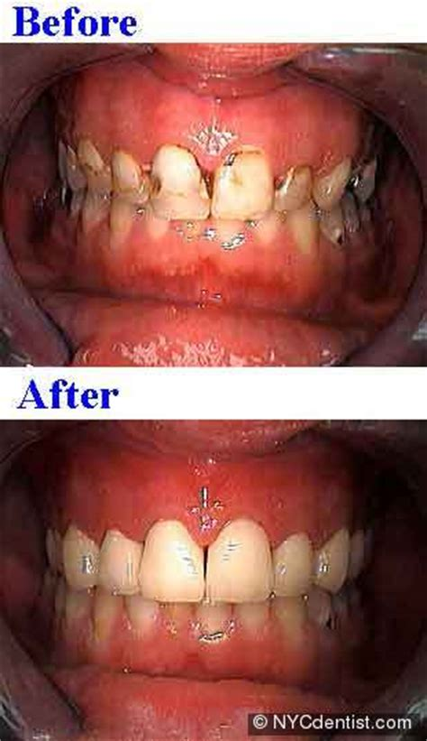 Addiction dentistry treatment for drug and alcohol abuse